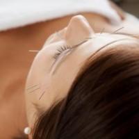 Akupunktur lindrer smerter