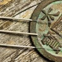 Acunova -moderne akupunktur